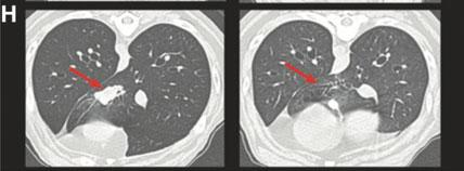 A CT scan shows the complete resolution of a primary lung tumor following the triple therapy.